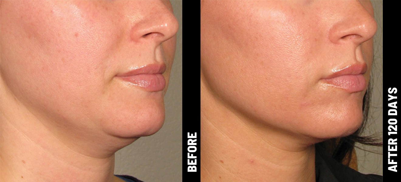 Ultherapy under-chin results
