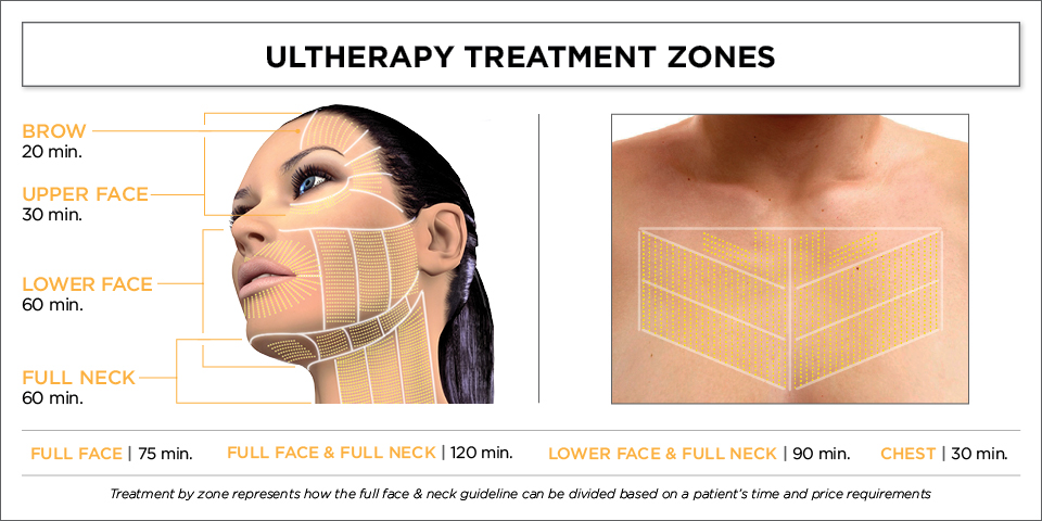 Ultherapy Support