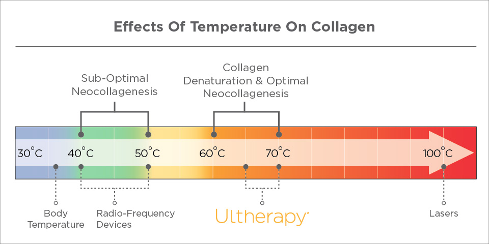 Temperature of Ultherapy Treatment