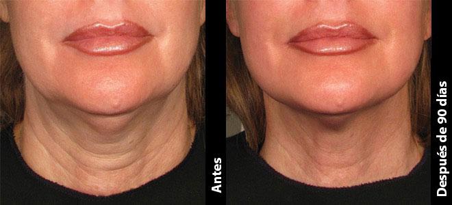 Antes y Después: Joanne, 58