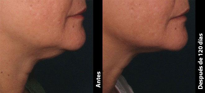 Antes y Después: Heather, 46