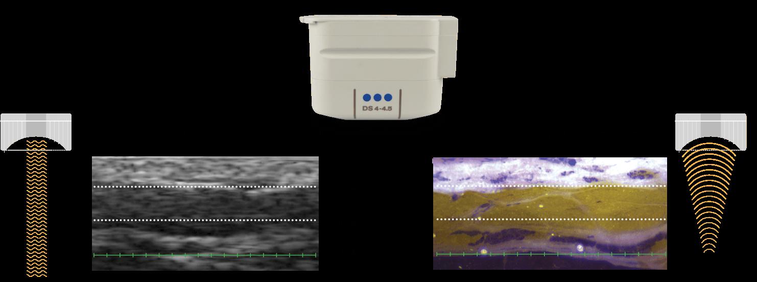 Ultrasound Imaging Illustration