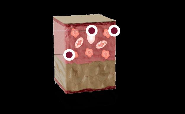 Illustration: Skin phase 1: inflamation