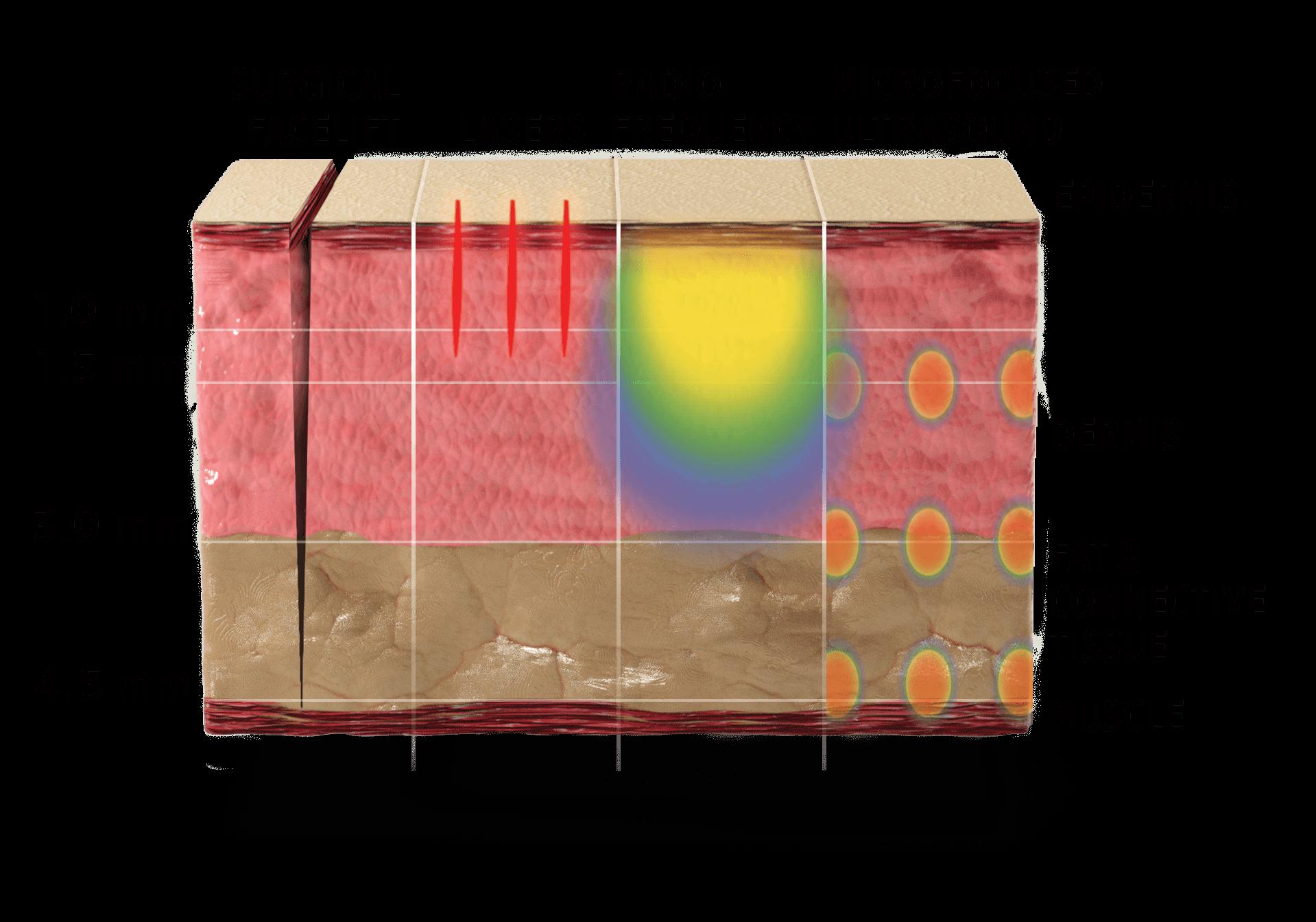 Illustration: Skin layers deep treatment