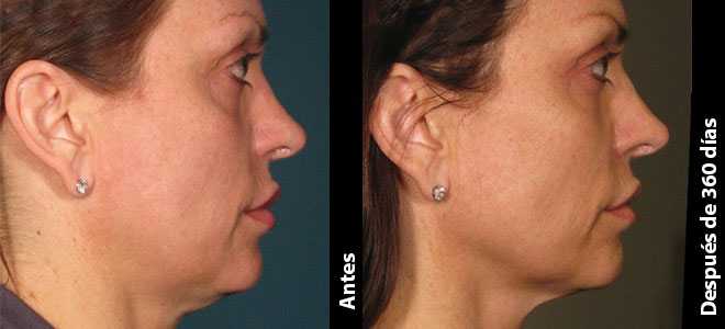 Antes y Después: Diana, 62