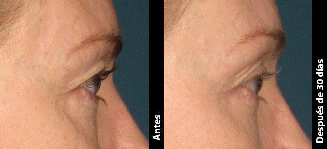 Antes y Después: Kathleen, 41