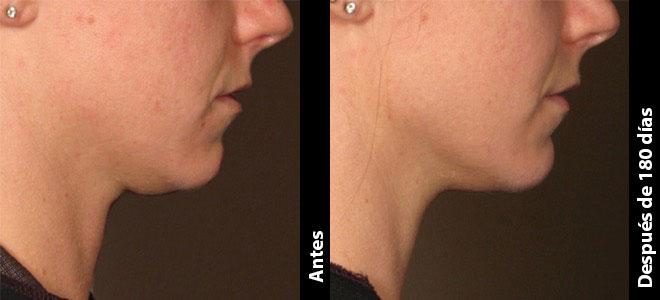 Antes y Después: